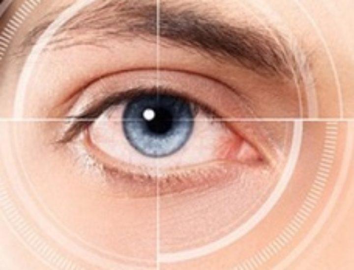 Астигматизм: симптомы, причины и лечение