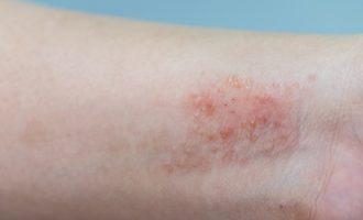 Дерматит на коже: лечение мазями и кремами в домашних условиях