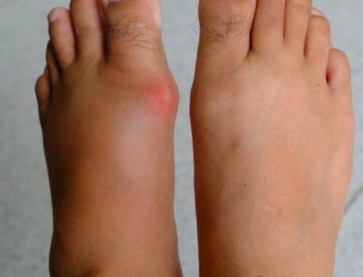 Подагра: признаки и лечение у женщин в домашних условиях