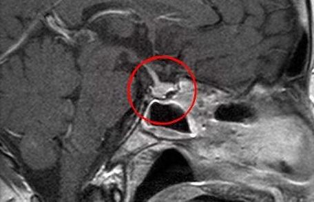 Аденома гипофиза – симптомы, лечение, удаление у мужчин