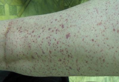 Как отличить васкулит от дерматита