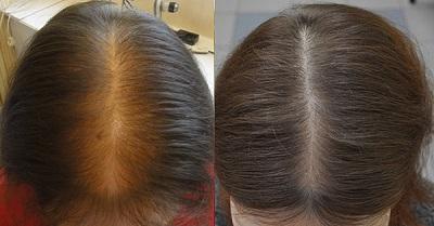 Алопеция выпадение волос у женщин у женщин: причины и лечение