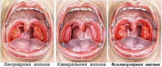 Фото горла при ангине у взрослых