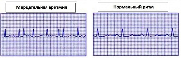 Постоянная форма мерцательной аритмии лечение