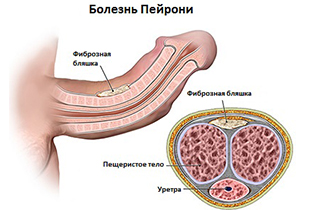 Болезнь Пейрони: причины и лечение, фото у мужчин
