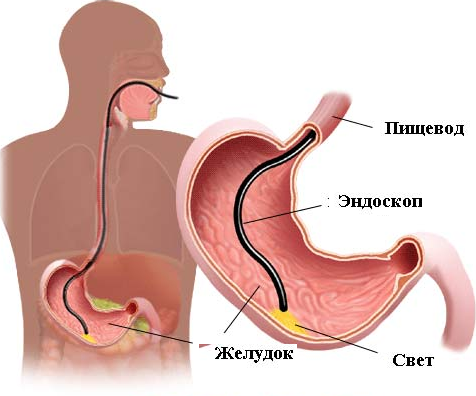 Бульбит желудка симптомы и лечение thumbnail