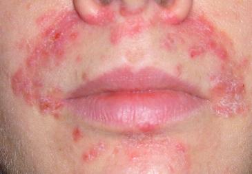 Сколько сыпь при дерматите