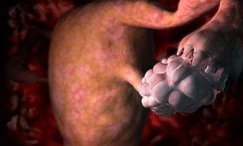 Как лечить дисфункцию яичников репродуктивного периода