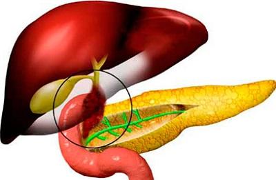 Дискинезия желчевыводящих путей причины диета лечение