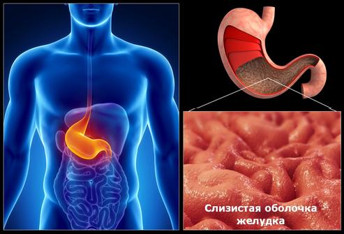 Причины развития гастрита