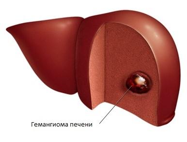 Гемангиома печени, причины у взрослых и лечение