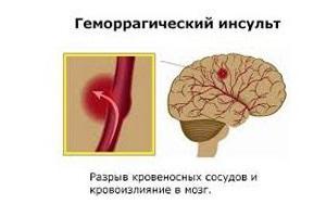Шанс выжить после отека головного мозга