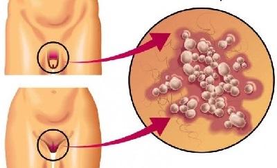 Герпес в интимной зоне у женщин, причины, лечение
