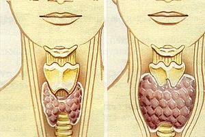 Гипотиреоз - что это? Симптомы и лечение щитовидной железы
