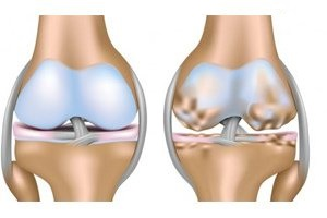 Гонартроз 2 степени коленного сустава