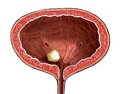 Камни в мочевом пузыре симптомы