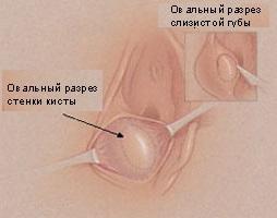 Больной с кистой бартолиниевой железы показано
