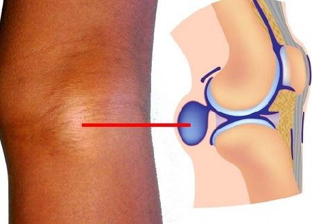 Киста Бейкера под коленом – как лечить, причины возникновения, возможные осложнения