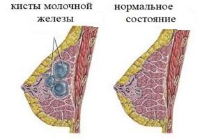 Киста молочной железы причины возникновения
