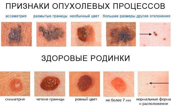 Меланома кожи – как выглядит рак кожи (фото)? Меланома кожи – стадии по ТНМ, симптомы и признаки