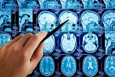 Менингиома головного мозга что это такое