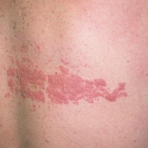 Опоясывающий герпес - что это, причины, симптомы, лечение