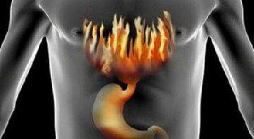 Повышенная кислотность желудка, симптомы и лечение в домашних условиях