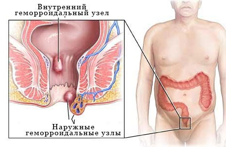 Внутренний геморрой прямой кишки фото