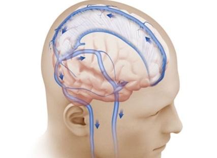 Внутричерепная гипертензия у взрослых