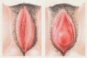 Вульвит у женщин симптомы и лечение фото