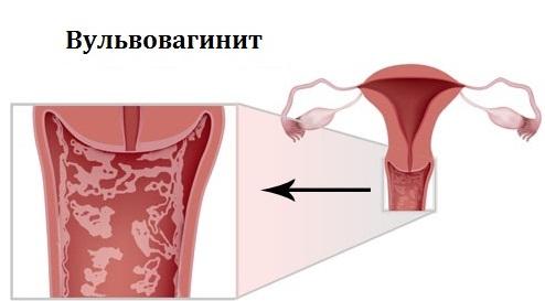 Вульвовагиноз симптомы фото
