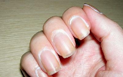 Масло от заусенцев на пальцах рук