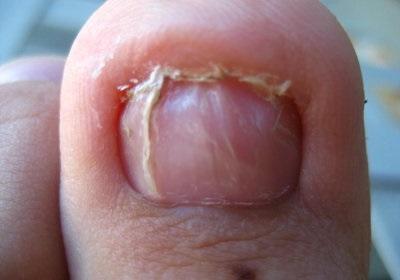 Вросший ноготь на втором пальце ноги