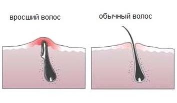 Как избавиться от вросших волос в зоне бикини, на ногах. Средства для удаления