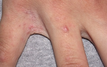 Чесотка симптомы фото первые признаки, препараты, мази от чесотки