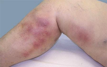 Как болит нога при тромбе фото