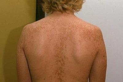 Отрубевидный лишай у человека: фото, лечение, причины и симптомы