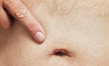 Симптомы пупочной грыжи у женщин