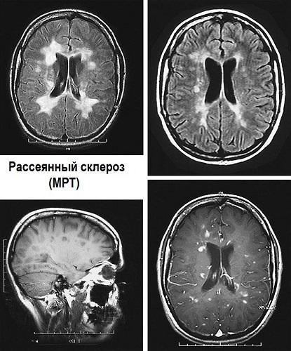Как лечить склероз: можно ли избавиться от него, какой врач поможет, какие есть народные средства, медикаменты и операции, каковы меры профилактики?