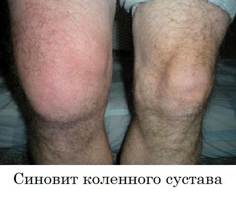 Лечение синовита и менисцит коленного сустава