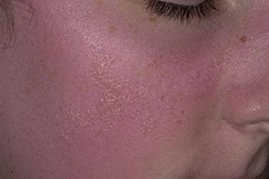 Дерматиты на лице от солнца thumbnail
