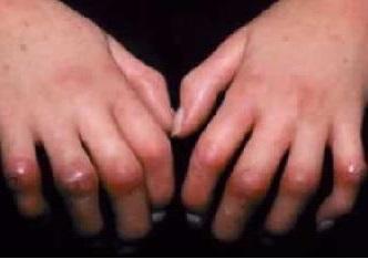 Склеродермия – что это такое, и как лечить опасную болезнь?