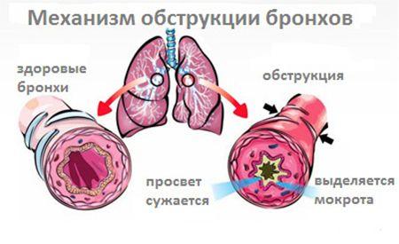 Обструктивный бронхит частота дыхания thumbnail