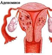Аденомиоз яичника (правого или левого)