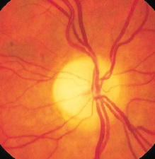 Частичная атрофия зрительного нерва - Всё о неврологии
