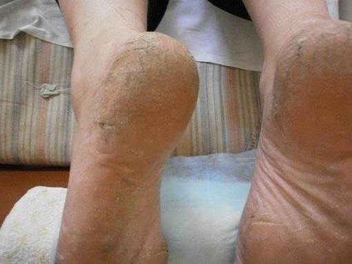 Гангрена ноги. Фото начальная стадия при сахарном диабете, лечение без операции в домашних условиях