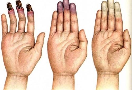 Синдром рейно у женщин