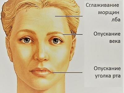 Нейропатия лицевого нерва причины