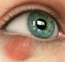 Халязион верхнего века - причины, симптомы (фото), лечение на глазу