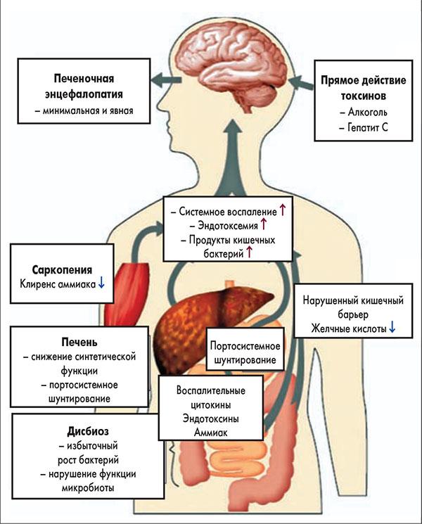 Энцефалопатия при циррозе печени прогноз